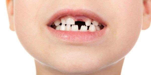 Dlaczego nie należy lekceważyć dbania o zęby mleczne