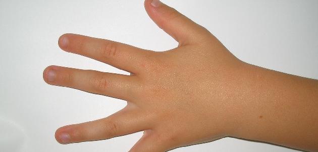 Gdy dziecko obgryza paznokcie