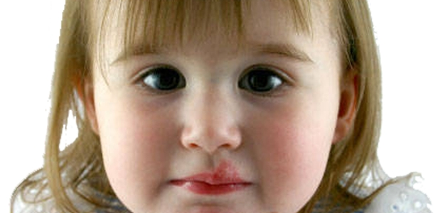 Opryszczka u dzieci