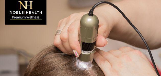 Wypadanie włosów - wywiad z trychologiem.